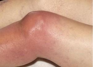 gigt i knæ, gigt knæ, artrit knæ, infektion knæ, kiropraktor københavn, kiropraktor vesterbro, kiropraktor frederiksberg