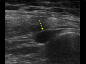 ultralydsscanning af hofte og lyske, ultralydsscanning af hofte, ultralydsscanning af lyske, ultralydsscanning københavn, ultralydsscanning frederiksberg