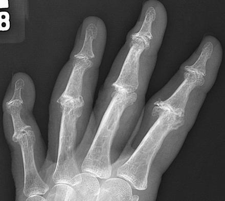 brækket håndled operation