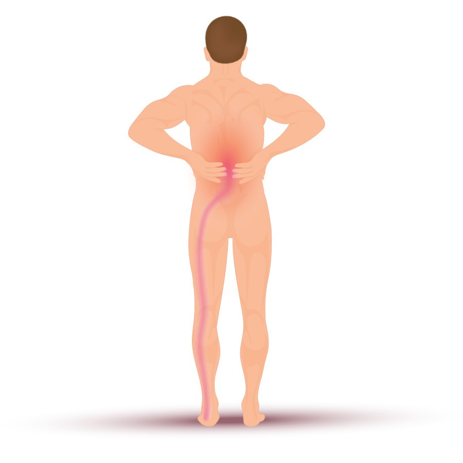 muskelinflammation lår behandling